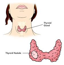 Some General Knowledge about Thyroid Nodules