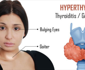 What Are the Causes of Hyperthyroidism?