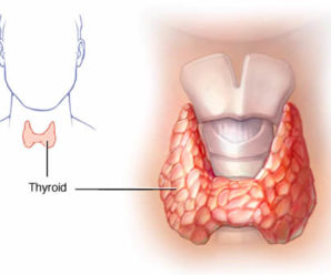 Hyperthyroidism (overactive thyroid): Overview, Symptoms and Causes